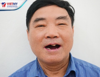Cấy ghép răng IMPLANT ALL ON 4, 6